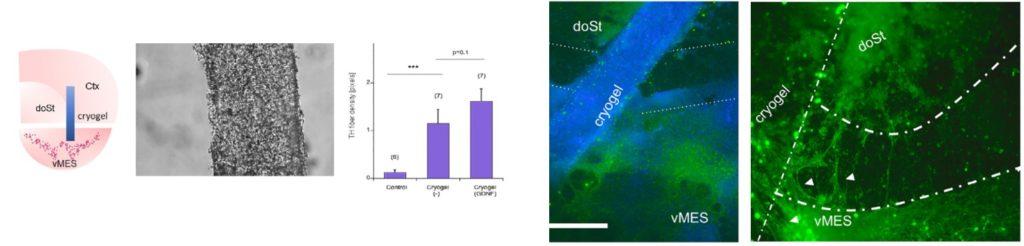 Ex vivo tissue slice culture model of Parkinson's disease