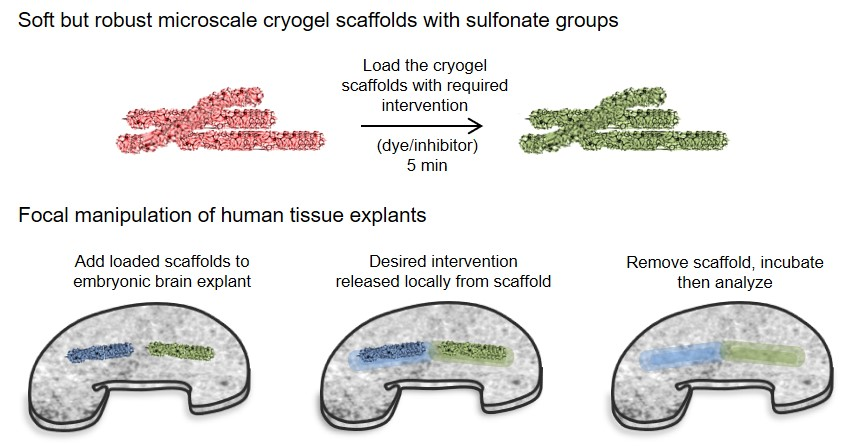 Cryogel scaffolds for local delivery of therapeutics to human brain tissue. An easy to use tool for neuroscientists.